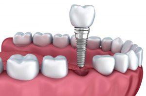 Implantes Dentários - Dentista Brooklin